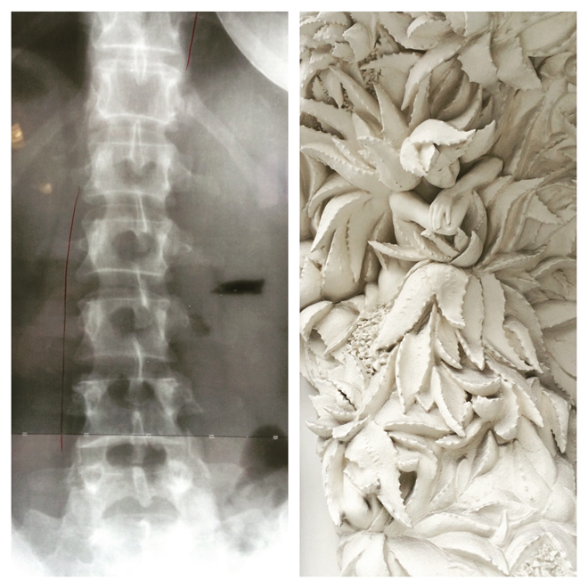 diptych of x-ray and leafy sculpture